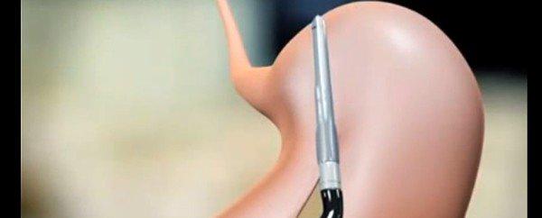 chirurgia bariatrica