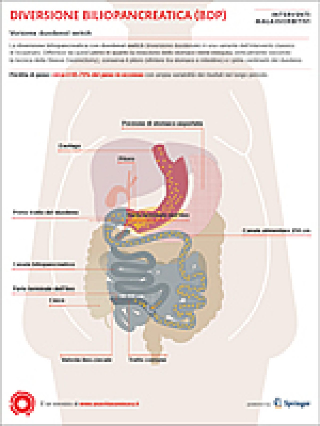Diversione biliopancreatica con Duodenal Switch