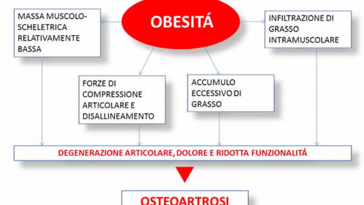 Obesità ed artrosi