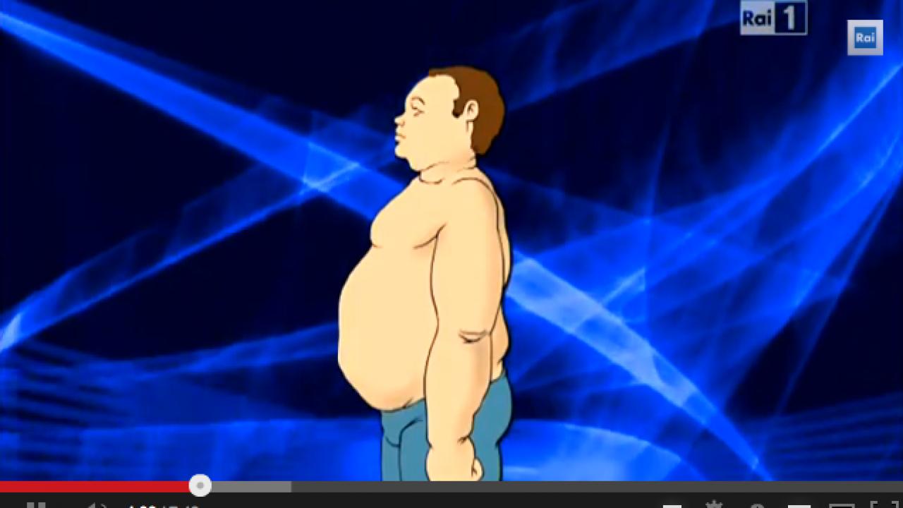 Obesità e chirurgia bariatrica