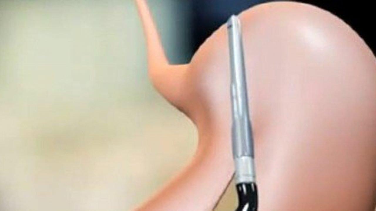 Chirurgia bariatrica: partito il nuovo Centro di Santa Maria Nuova