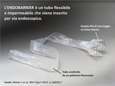 Endobarrier: una nuova procedura endoscopica per ridurre il peso e per il trattamento del diabete di tipo 2