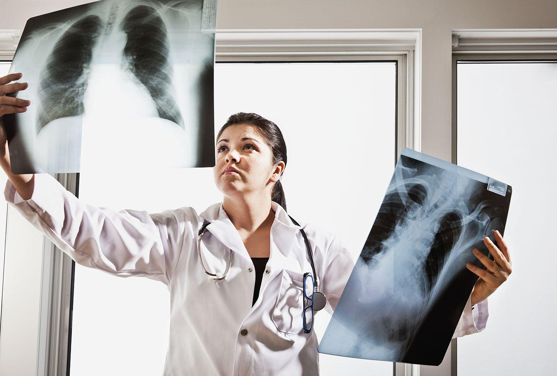 L'eccesso di peso incide anche sulla funzione respiratoria