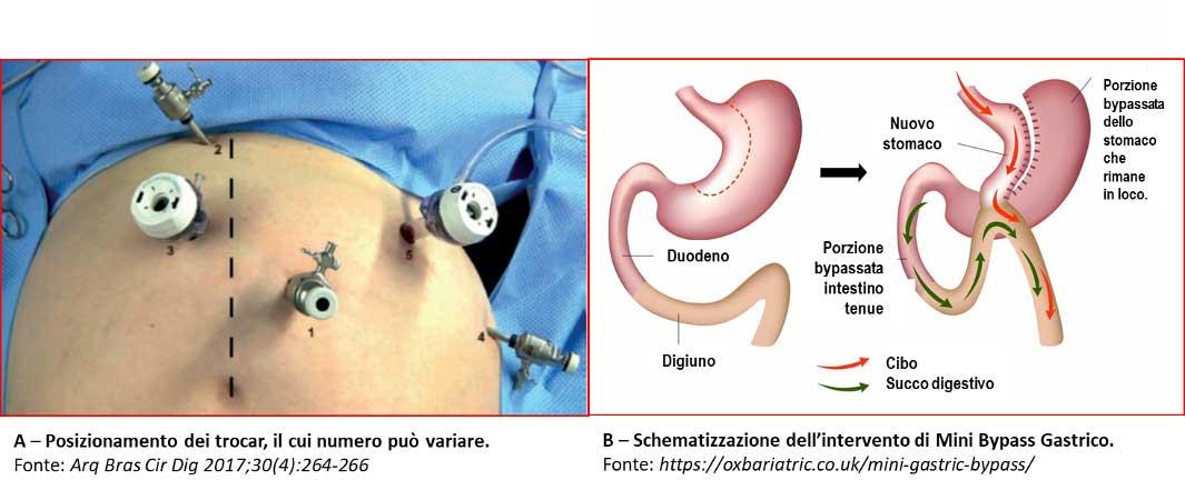 Minibypass gastrico